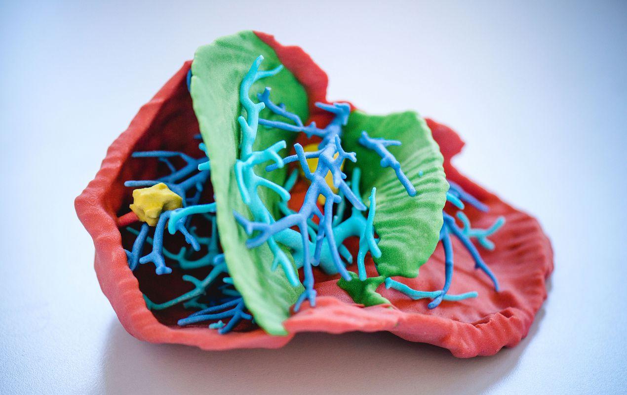 3D-Prototyping im ARTORG Center