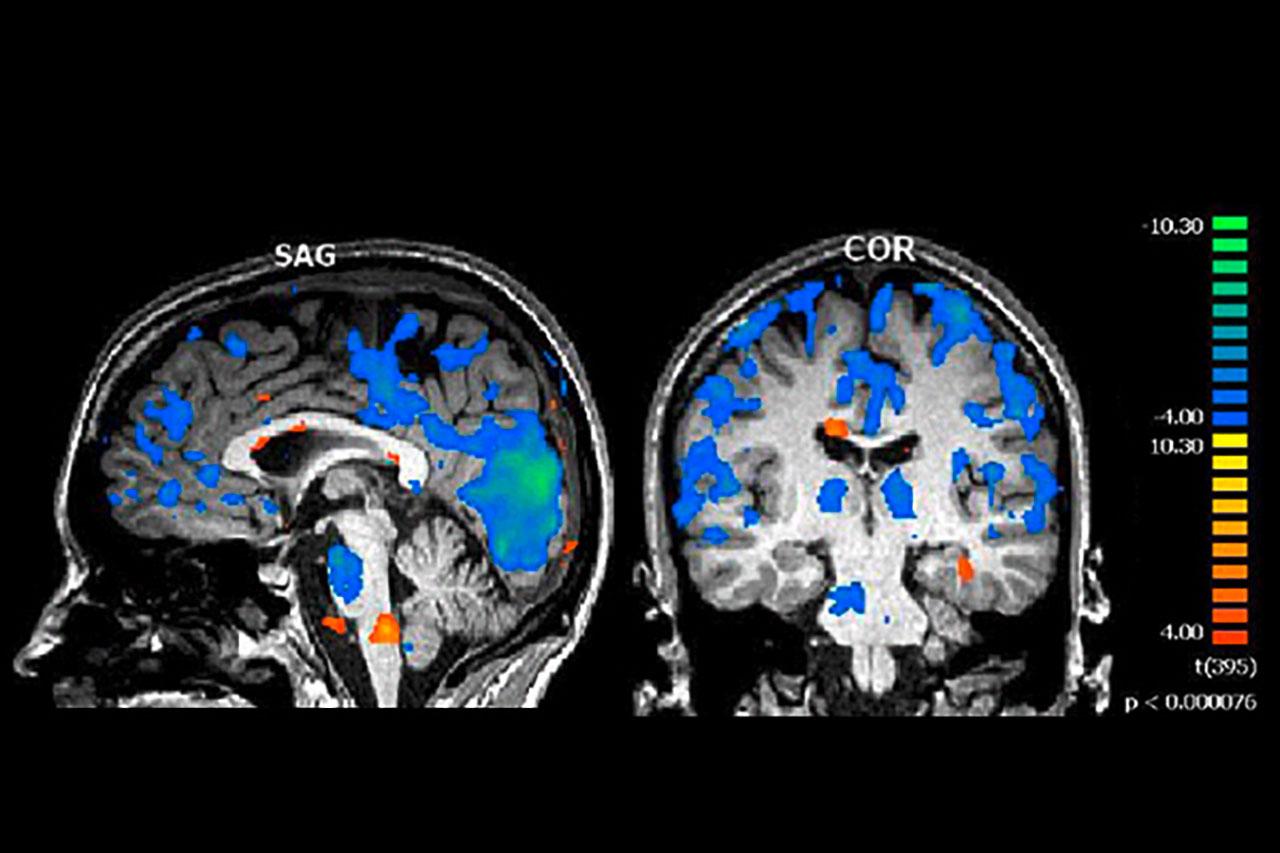 Im Schlaf finden sich folgende aktive Schaltkreise im menschlichen Gehirn: Deaktivierung des Grosshirns(blau)und Aktivierung vonAnteilendes Hirnstamms (orange). Der Hippocampus (orange, im zweiten Bild unten rechts) sorgt für dieGedächtniskonsolidierung (MRI Universitätsinstitut für Neuroradiologie).